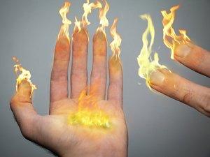significado-de-Soñar-con-quemaduras